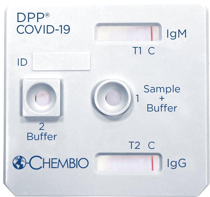 CHEMBIO_COVID-19_Cassette_NEGATIVE