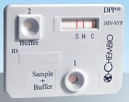 DPP HIV-Syph cassette positive.png